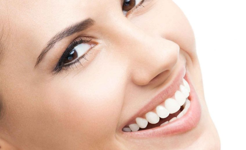 Dental Veneers Northampton