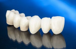 Dental Bridges Northampton