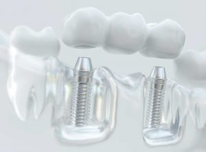 Dental Implants Northampton