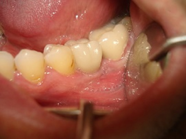 2- Implant After
